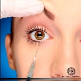 aplicação de botox abaixo dos olhos Indianópolis