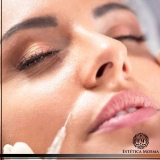 aplicação de botox ao redor da boca Itaim Bibi