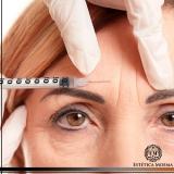 aplicação de botox entre as sobrancelhas cotação Brooklin