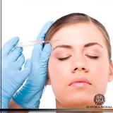 aplicação de botox na testa valor Cerqueira César