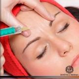 aplicação de botox na testa Tatuapé