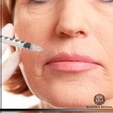 aplicação de botox no rosto valor Higienópolis