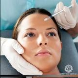 aplicação de botox na testa