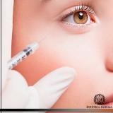 aplicação de toxina botulínica na face cotação Tatuapé