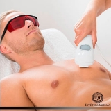 custo de depilação a laser para homens Santana