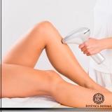 custo de depilação de perna Cerqueira César