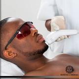 depilação a laser para homens valor Aclimação