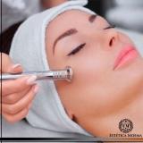 indicação para peeling para acne e manchas Pinheiros