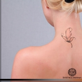 indicação para remoção de tatuagem ácido Cerqueira César