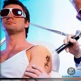indicação para remoção de tatuagem colorida Consolação