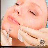 limpeza de pele dermatologista valor Perdizes
