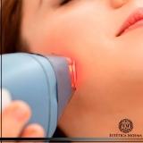 local para tratamento a laser para manchas no rosto Morumbi