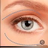 local para tratamento para olheira laser Perdizes
