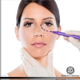 local para tratamento para olheiras com laser Higienópolis