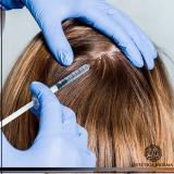 melhor método de tratamento de calvície feminina Avenida Paulista