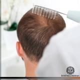 melhor método de tratamento de calvície masculina Cerqueira César