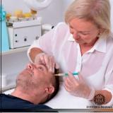 melhor método de tratamento para calvície masculina Vila Clementino