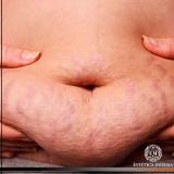 onde encontrar tratamento para estrias e gordura localizada Morumbi