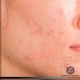 procuro por remoção de cicatrizes de acne Ibirapuera