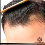 procuro por tratamento mmp para alopecia Perdizes