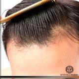 procuro por tratamento mmp para alopecia Jardins