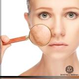 qual o preço do tratamento a laser para manchas no rosto Ibirapuera