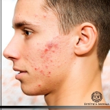 quanto custa limpeza de pele masculina Aclimação