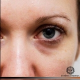quanto custa tratamento para olheira escura Cerqueira César