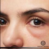 quanto custa tratamento para olheiras com ácido hialurônico Consolação