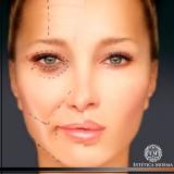 quanto custa tratamento para olheiras com laser Avenida Paulista