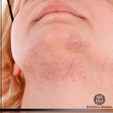 remoção de cicatrizes acne valores Ibirapuera