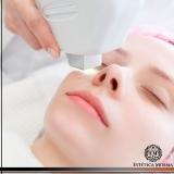 remoção de cicatrizes de acne a laser valor Vila Mariana