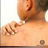 remoção de cicatriz de catapora