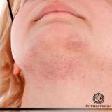 remoção de cicatriz no rosto