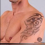 remoção de tatuagem com ácido melhor preço Cerqueira César
