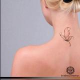 remoção de tatuagem com ácido