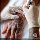 remoção de tatuagem com dermatologista