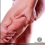 tratamento a laser para gordura localizada valores Itaim Bibi