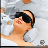 tratamento a laser para manchas no rosto valor Vila Mariana