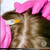 tratamento capilar com microagulhamento Higienópolis