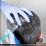 tratamento capilar masculino valor Perdizes
