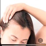 tratamento de calvície feminina eficaz Itaim Bibi