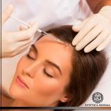 tratamento mmp para alopecia Aclimação