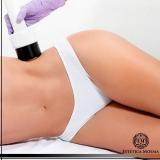 tratamento para estrias com laser Ibirapuera