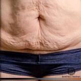 tratamento para flacidez abdominal que funciona Tatuapé