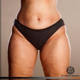 tratamento para flacidez corporal Indianópolis