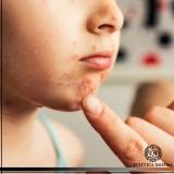 tratamento para mancha de acne cotação Jardim América