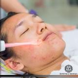 tratamento para mancha de acne Higienópolis