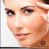 tratamento para mancha de pele valor Itaim Bibi