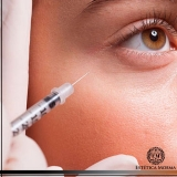 tratamento para olheiras com ácido hialurônico Brooklin